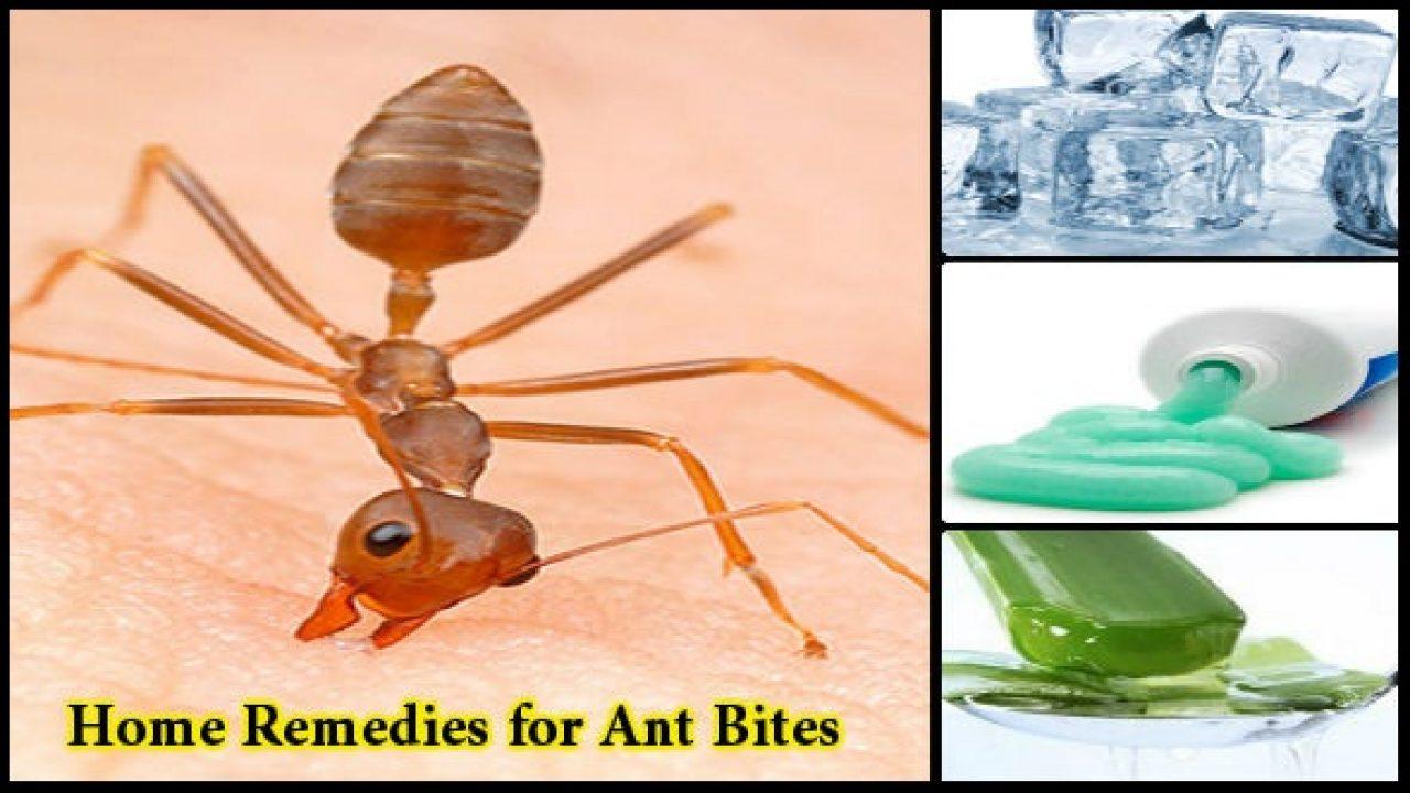 Home Remedies for Ant Bites: Chiti ke Katne Par Upchar
