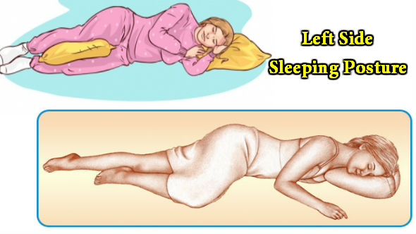 Left Side Sleeping Posture