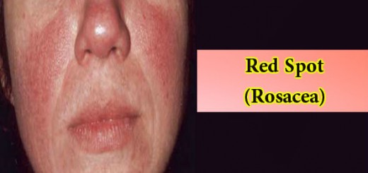 Red Spot-Rosacea