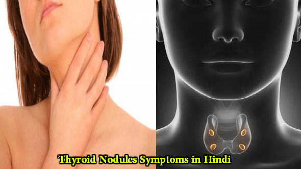Thyroid Nodules Symptoms in Hindi