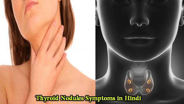 Thyroid Nodules Symptoms in Hindi