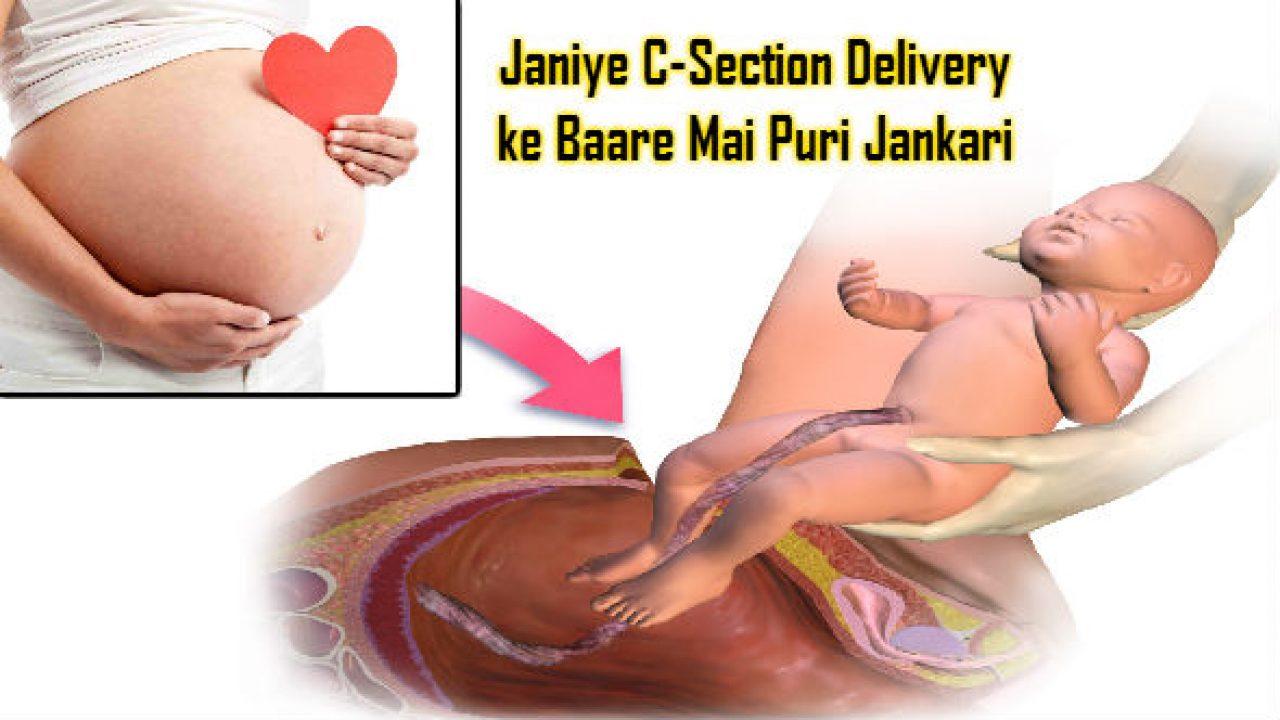 Janiye C-Section Delivery ke Baare Mai Puri Jankari
