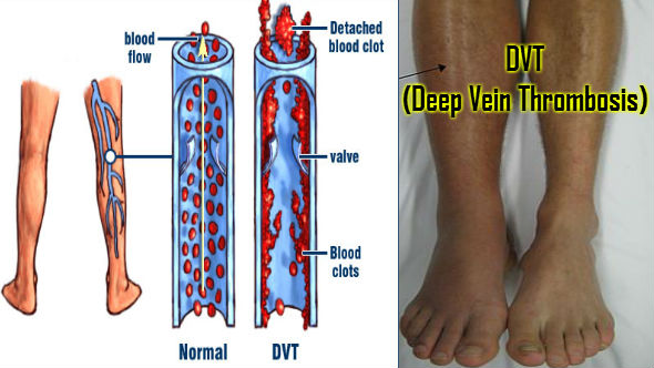 DVT-Deep Vein Thrombosis