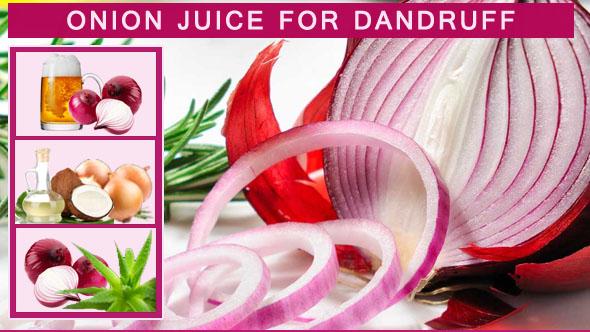Onion Juice for Dandruff