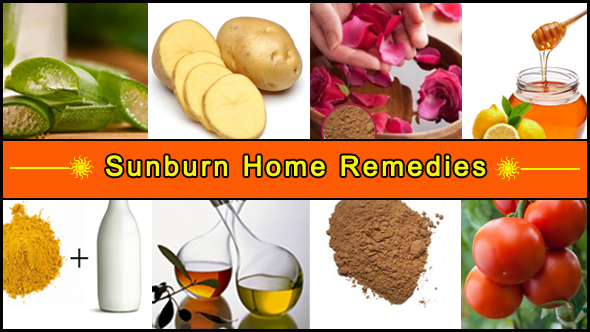Sunburn Home Remedies