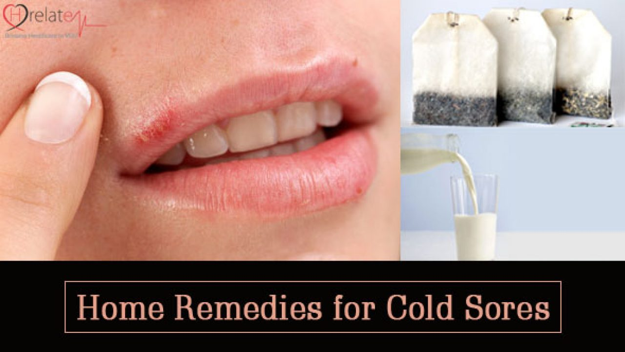 Home Remedies for Cold Sores: Fever Blister Se Nijad Paye