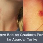 How to Remove Love Bites: Kiss Ke Nishan Ko Aese Hataye