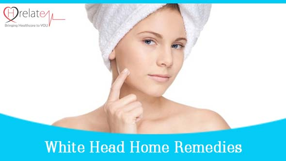 whiteheads home remedies