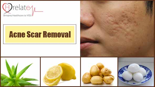 Acne Scar Removal in Hindi