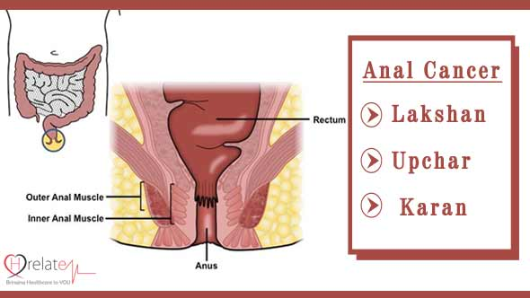 Anal Cancer Symptoms