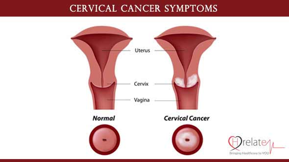 Cervical Cancer Symptoms in Hindi
