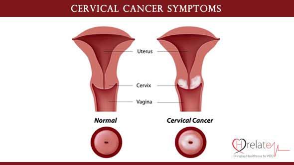 Cervical Cancer Symptoms in Hindi