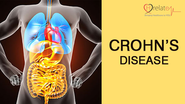 Crohn's Disease in Hindi