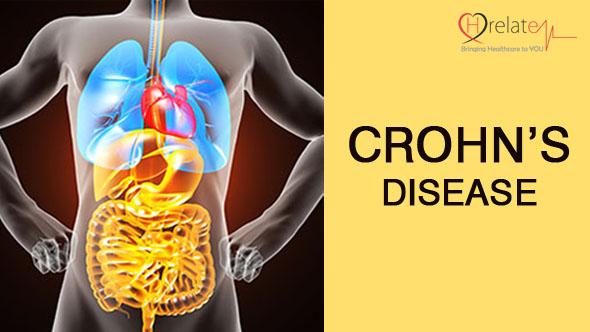 Crohn's Disease in Hindi