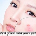Home Remedies for Boils: Gharelu Tariko se Paye Fode se Nijad
