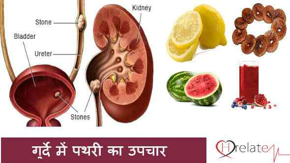 Kidney Stones Treatment in Hindi