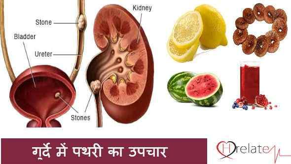 Kidney Stones Treatment in Hindi