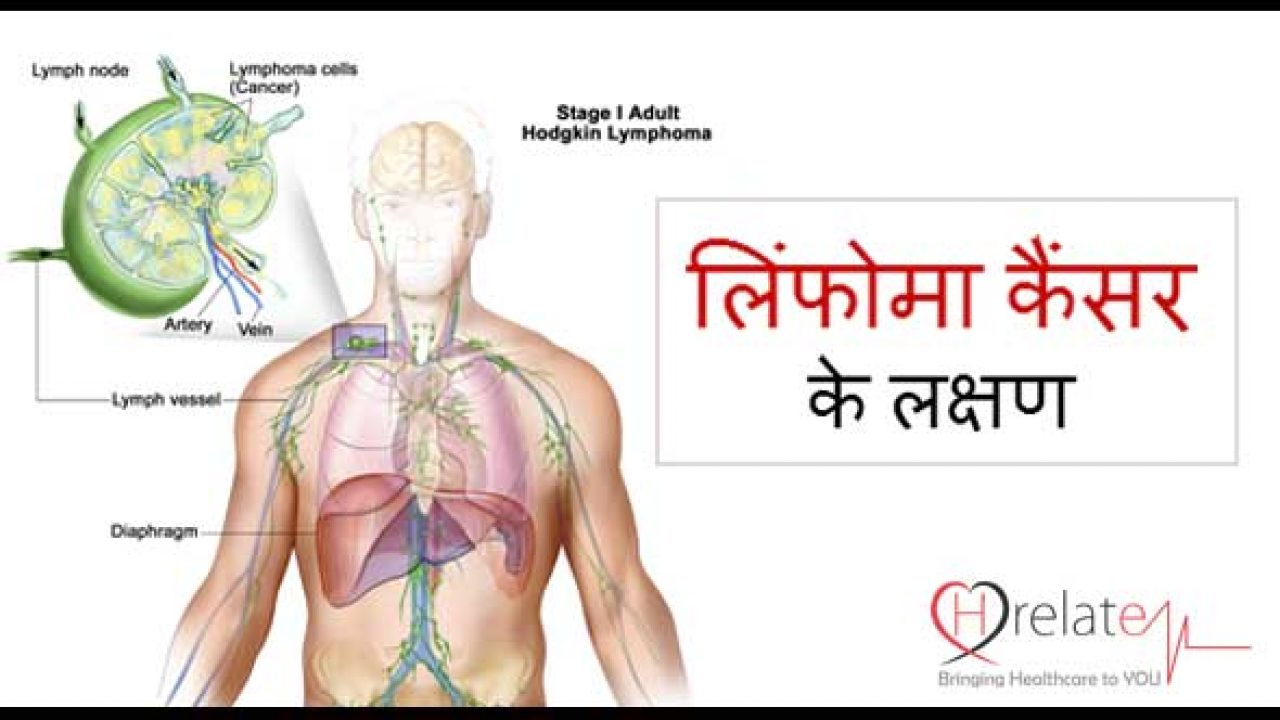 Lymphoma Symptoms in Hindi – Iske Lakshnao Ko Pehchane