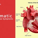 Rheumatic Heart Disease Symptoms in Hindi – Karan or Niwaran