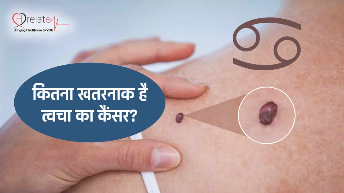 Skin Cancer Symptoms in Hindi