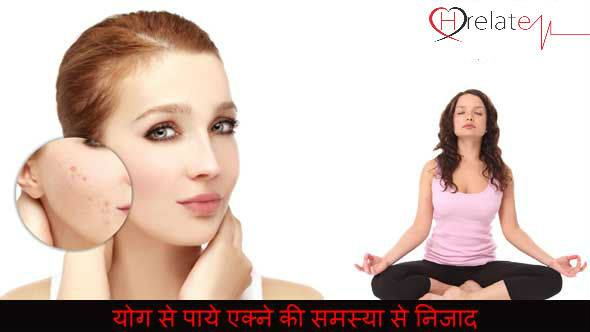 Yoga for Acne in Hindi
