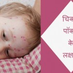 Chicken Pox Symptoms in Hindi: Jane Lakshan aur Upchar