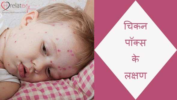 Chicken Pox Symptoms in Hindi: Jane Lakshan aur Upchar