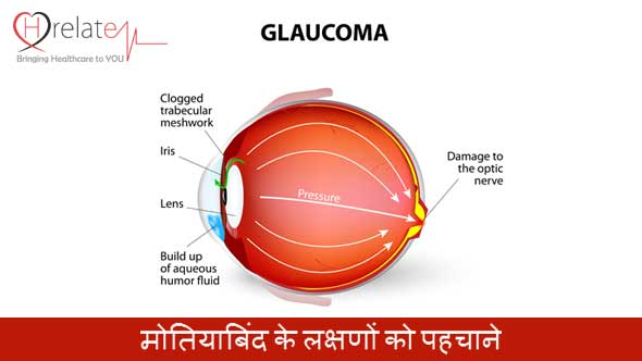 Glaucoma Symptoms in Hindi