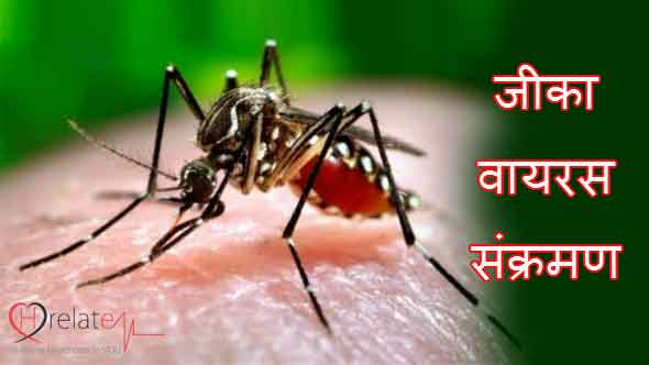 Zika Virus in Hindi