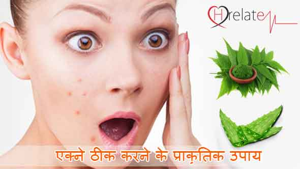 Natural Acne Treatment in Hindi