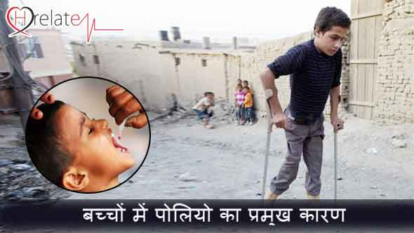 Polio Disease in Hindi