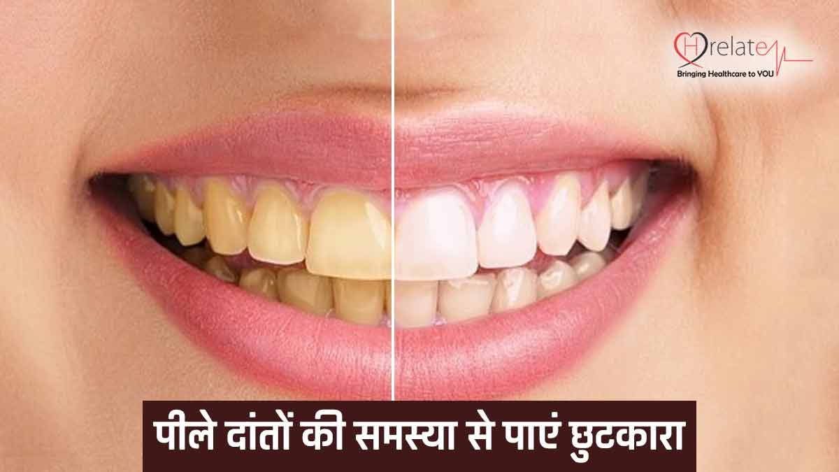 Teeth Whitening Home Remedie