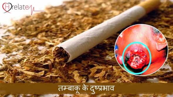 Tobacco Effects in Hindi