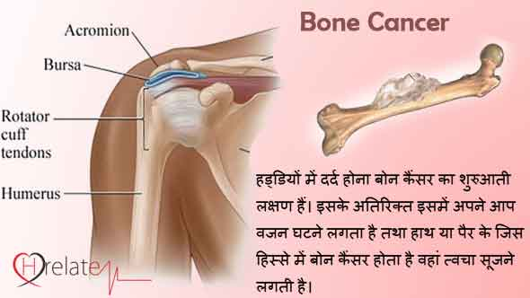 Bone Cancer in Hindi