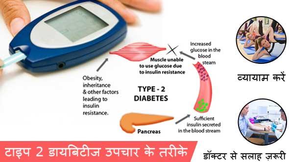 Diabetes Type 2 Treatment