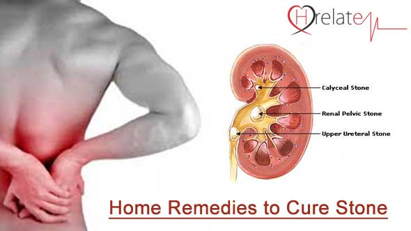 Home Remedies for Stone