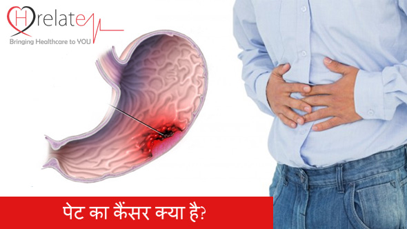 Colon Cancer in Hindi