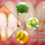 Home Remedies for Pyria: Masudo Ki Samaysa Ka Upchar