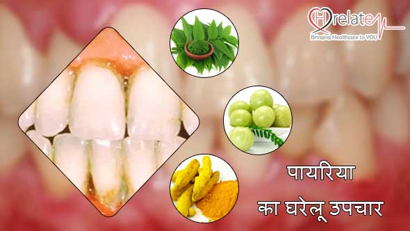 Home Remedies for Pyria in Hindi
