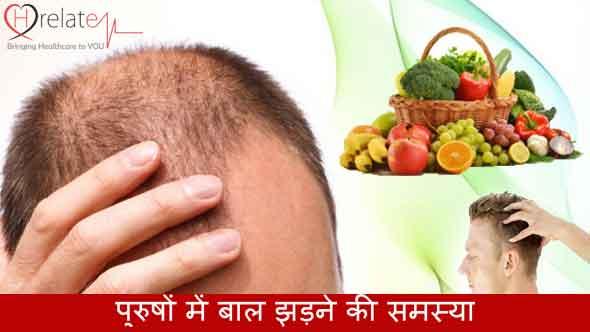 Hair Loss Treatment for Men in Hindi