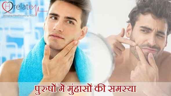Acne Treatment for Men in Hindi