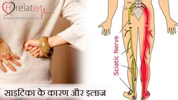 Sciatica in Hindi