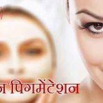 What is Pigmentation in Hindi – Twacha Ki Samanya Samasya