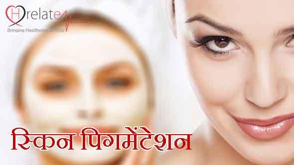 What is Pigmentation in Hindi