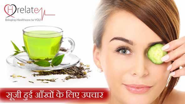 Eye Bags Home Remedies in Hindi