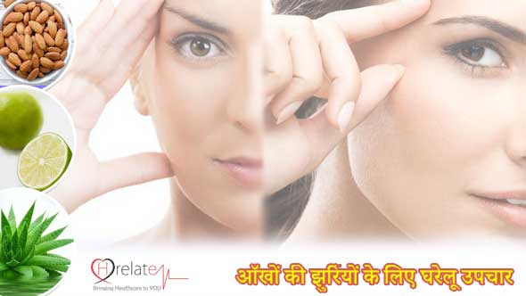 Home Remedies for Eye Wrinkle