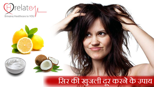 Home Remedies for Itchy Scalp in Hindi