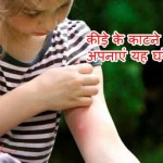 Home Remedies for Insect Bite: Vishele Dansh Se Bachav