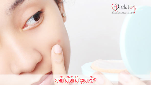 Causes of Pimples in Hindi