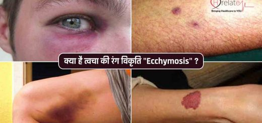 Ecchymosis in Hindi